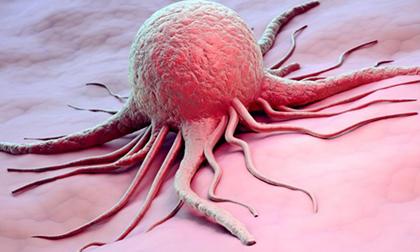11 cách né mặt tử thần mang tên ung thư cực đơn giản, hiệu quả