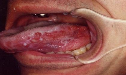 Thấy dấu hiệu này đừng lúc nào cũng nghĩ nhiệt miệng tới bệnh viện ngay vì có thể mắc ung thư giai đoạn đầu