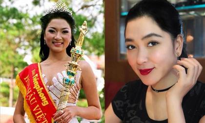 Lần đầu tiên, Hoa hậu Nguyễn Thị Huyền lên tiếng về tin đồn phẫu thuật thẩm mỹ