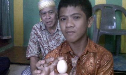 Kỳ lạ cậu bé 12 tuổi một tuần... đẻ ra 7 quả trứng