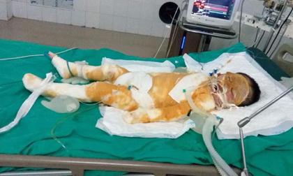 Thái Bình: Chập điện cháy nhà giữa đêm, vợ chồng bỏng nặng, bé gái 4 tuổi nguy kịch