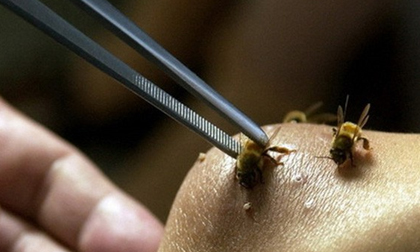 Tử vong do chữa bệnh bằng cách cho ong đốt - Lời cảnh tỉnh cho người muốn chữa bệnh bằng nọc ong