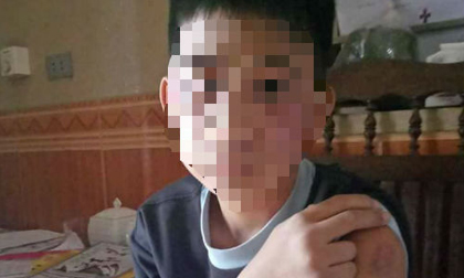 Vụ bé trai 14 tuổi bị bố và mẹ kế bạo hành: Chờ kết luận giám định để khởi tố vụ án