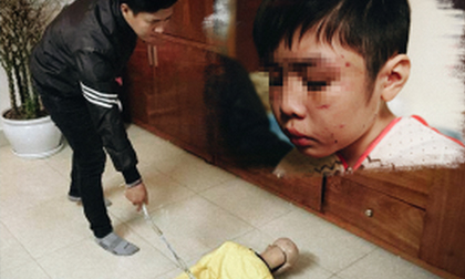 Hai năm địa ngục của đứa trẻ bị bố và mẹ kế đánh rạn sọ não