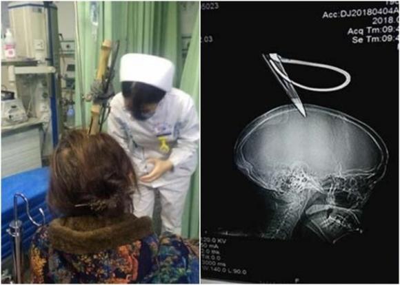 Người phụ nữ thoát chết trong gang tấc sau khi bị kéo rơi trúng đầu - Ảnh 1.