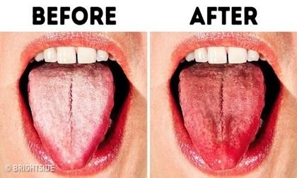 10 cách chữa bệnh lưỡi trắng đơn giản nhất ngay tại nhà