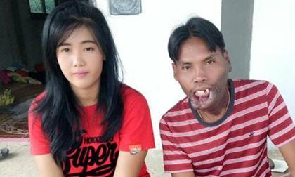 Bất chấp xã hội gièm pha về ngoại hình, cặp đôi 'đũa lệch' vẫn sống vô cùng hạnh phúc