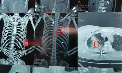 Thông tin mới nhất về sức khỏe nữ Giám đốc bị bắn tại phòng làm việc ở Bắc Giang