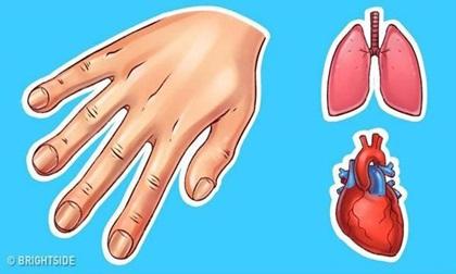 Đừng chủ quan với biểu hiện lạ trên tay, nó tiết lộ nhiều điều về sức khỏe hơn bạn nghĩ