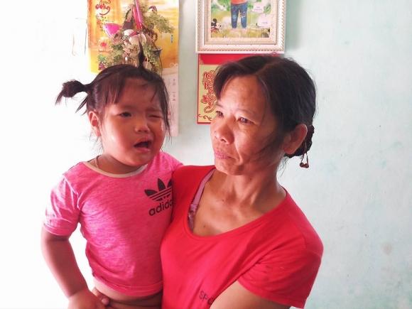 Giáo dục - Thanh Hóa: Cô giáo đánh vào đầu khiến bé 3 tuổi méo miệng?