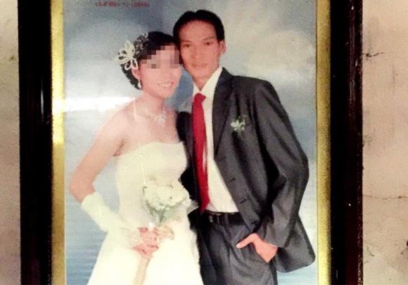 Nguyên nhân chồng chém vợ đứt lìa ngón tay, vỡ xương gò má - 1