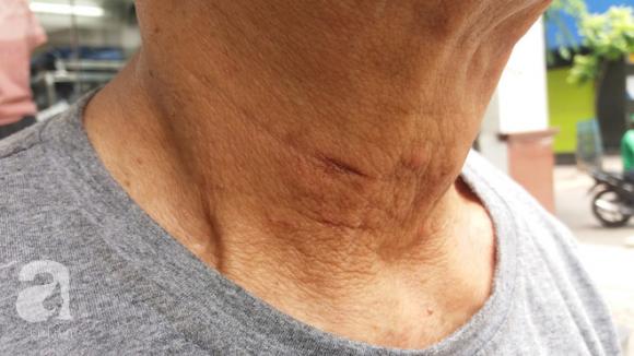 Người lái xe ôm bị nữ quái siết cổ để cướp ở Hà Nội: Tôi đã lường trước vì sợ nó bỏ thuốc mê - Ảnh 5.