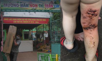 Xôn xao vụ việc trẻ mầm non bị bỏng do cô giáo dùng vòi nước nóng xịt rửa