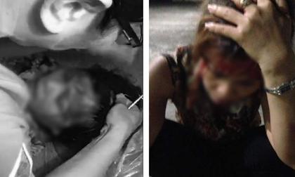 Cô vợ bất hạnh bị người tình của chồng đánh ghen chảy máu đầu