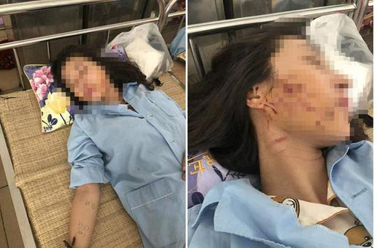 Khởi tố 3 phụ nữ đánh ghen lột đồ, đổ nước mắm, bột ớt lên nữ chủ tiệm spa - 2