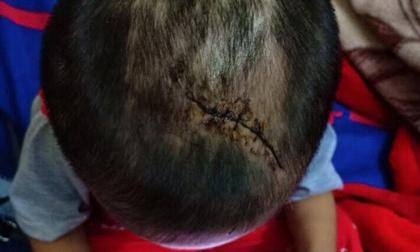 Nghi bé trai 3 tuổi bị mẹ ruột cùng cha dượng đánh đập đến thương tích