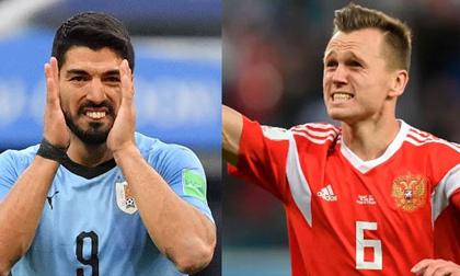World Cup, Uruguay – Nga: Suarez đấu cựu SAO Real, đại chiến khó lường