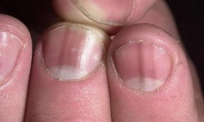 Nhìn dấu hiệu ở móng tay, biết ngay bạn đang mắc bệnh gì