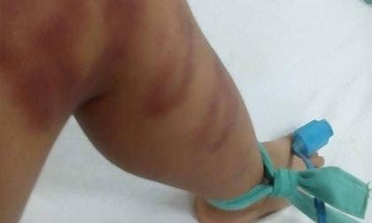 Bé trai 4 tuổi nguy kịch do người tình của mẹ bạo hành dã man