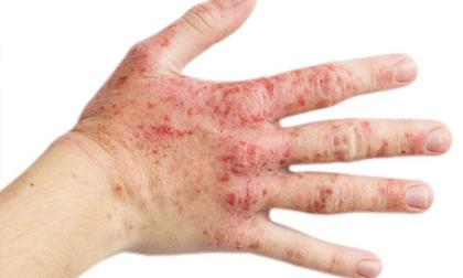 Vết bầm tím trên da cảnh báo loạt bệnh nguy hiểm, đọc ngay để phòng kịp thời