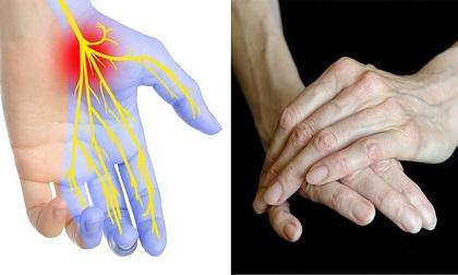 Thấy có những dấu hiệu này ở bàn tay hãy nhanh đi gặp bác sĩ vì có thể bạn đã mắc bệnh nguy hiểm