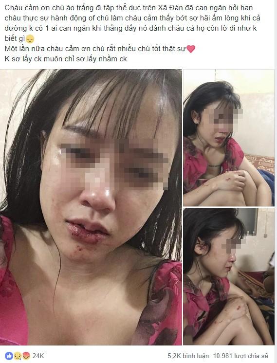 Cô gái xinh đẹp, bức ảnh môi bầm dập và dòng tâm sự cay đắng thu hút 11.000 lượt chia sẻ - Ảnh 1.