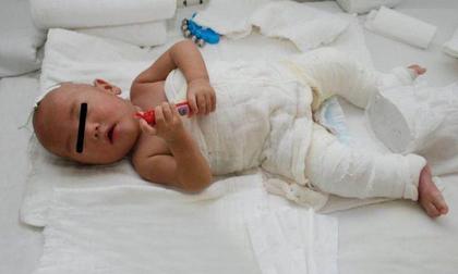 Cậu bé bị bỏng nước sôi 100 độ, hành động sơ cứu của người mẹ ai cũng nên học hỏi