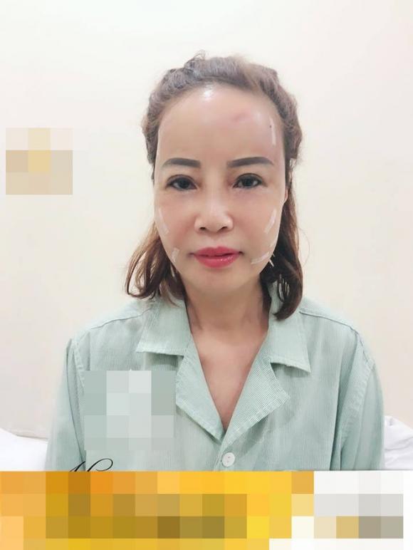 Cô dâu 62 tuổi tiến hành phẫu thuật thẩm mỹ, nhan sắc mới trẻ trung như ở tuổi 40 - Ảnh 1.