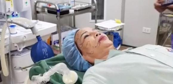 Cô dâu 62 tuổi tiến hành phẫu thuật thẩm mỹ, nhan sắc mới trẻ trung như ở tuổi 40 - Ảnh 3.