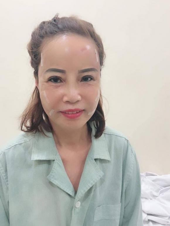 Bất chấp dao kéo mổ xẻ đau đớn, cô dâu 61 tuổi: Dù giảm thọ, tôi vẫn muốn xứng ngoại hình với chồng-1