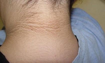 Thấy cổ con có vết đen tưởng cháy nắng nhưng hóa ra là dấu hiệu bệnh không thể bỏ qua
