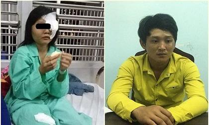 'Yêu râu xanh' đánh nữ sinh 15 tuổi mù mắt để giở trò đồi bại sa lưới