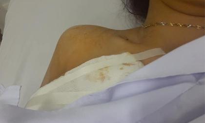 Xôn xao câu chuyện cô gái trẻ bị cướp đâm 2 nhát trọng thương trước ngày đi đăng ký kết hôn