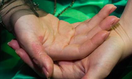 Ca sĩ Hương Tràm tự bóc da tay đến rỉ máu, cảnh báo nguy cơ bệnh gì?