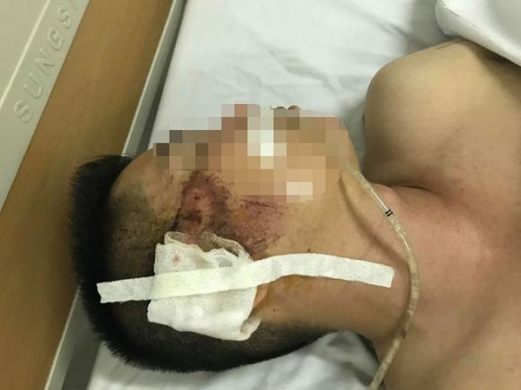 Mẹ của tài xế taxi bị người ngồi trong xe Mazda bắn: Nó cố tình giết con tôi