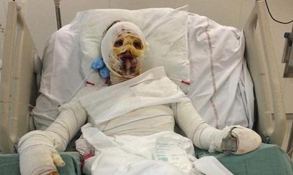 Cô gái bỏng rộp toàn thân sau khi dùng kháng sinh, căn bệnh này từng có người Việt mắc
