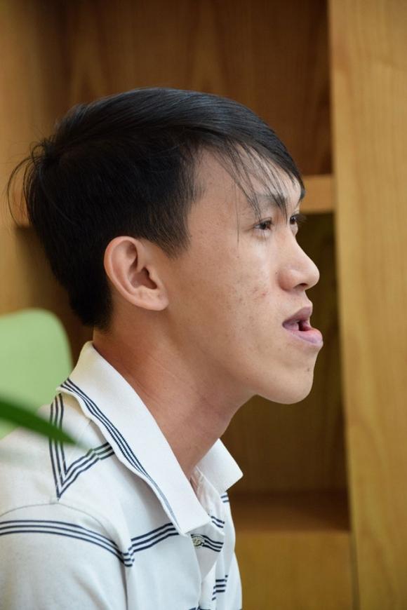 """chuyen doi cay dang cua chang thac si """"chay xe om"""" bi miet thi vi guong mat luoi cay - 2"""