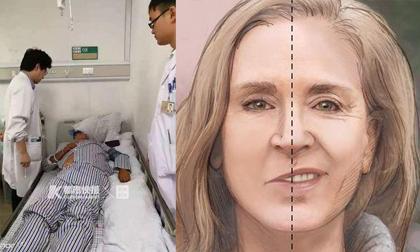 Chàng trai 29 tuổi đột nhiên á khẩu, trì hoãn bệnh một phút hàng triệu tế bào não sẽ chết