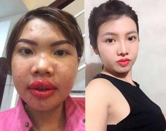 8 ca thẩm mỹ của chị em Việt gây bão dư luận vì biến gái xấu thành tiên-2
