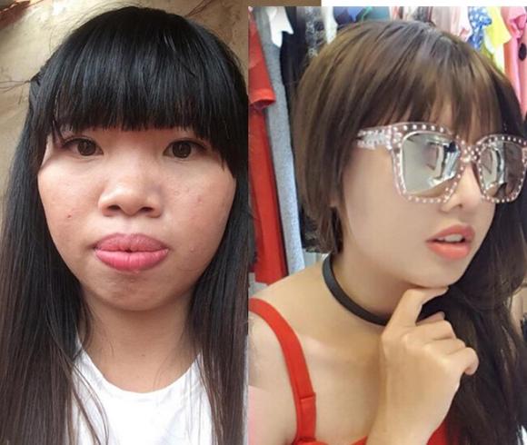 8 ca thẩm mỹ của chị em Việt gây bão dư luận vì biến gái xấu thành tiên-3