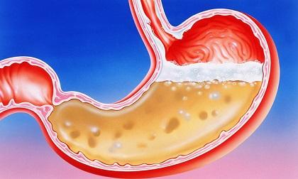 Muốn bảo vệ dạ dày không bị gặm nhấm nhất định phải tránh thật xa 6 loại thực phẩm này