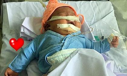 Bé gái sơ sinh 4kg bị gãy tay, nguy kịch vì bác sĩ đỡ đẻ sai cách