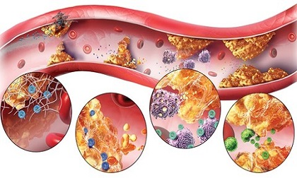 Hai sát thủ của tim mạch và cách ăn uống đúng để đẩy lùi căn bệnh này