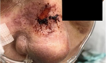 Người phụ nữ tử vong sau khi dùng nước rửa mũi chữa viêm xoang