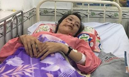 Nữ sinh lâm nạn vụ container tông hàng chục người thương vong: 'Xe máy gãy làm đôi, áo mưa rách từ trắng thành màu đỏ'