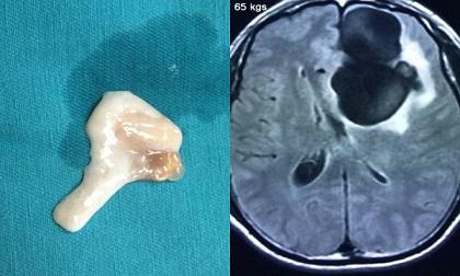 Bệnh nhân bị sán làm tổ như chùm nho trong não vì ăn món nhiều người ưa thích dịp Tết