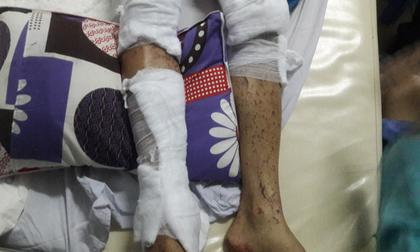 Vụ tạt axít ở Quảng Ngãi: Các đối tượng ra tay chưa đầy 20 giây