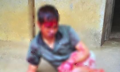 Thanh niên tâm thần bị hàng xóm chém 7 nhát vì làm đổ tường gạch và gãy cây cối trong vườn