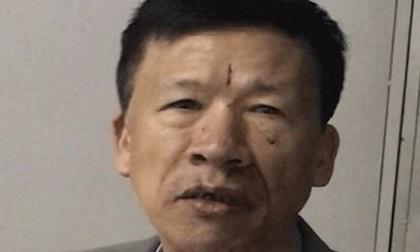 Nhân viên bảo vệ khách sạn sát hại đồng nghiệp