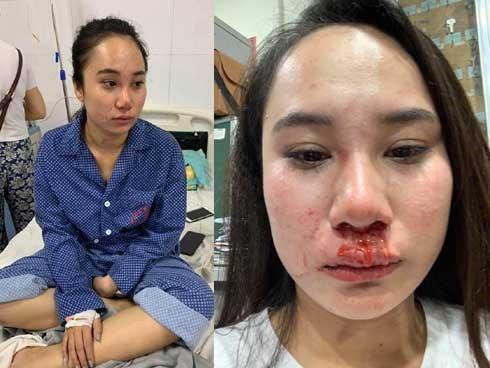 Cô gái bị đánh ghen, lột đồ ở Hà Nội: Do cạnh tranh bán hàng online? - Ảnh 1.